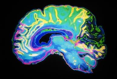 MRI_Brain